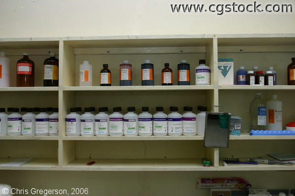 Bottles of Chemicals used in Laboratory Microscopy, Ospital ng Angeles (ONA)